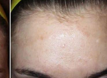 Купить Лечение псориаза,Интернет-магазин Freyia.ru (фрейя)