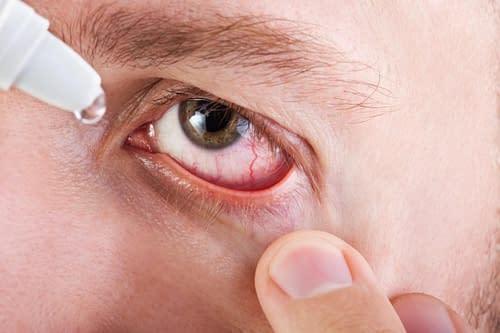 Купить Симптомы глазных заболеваний,Интернет-магазин Freyia.ru (фрейя)
