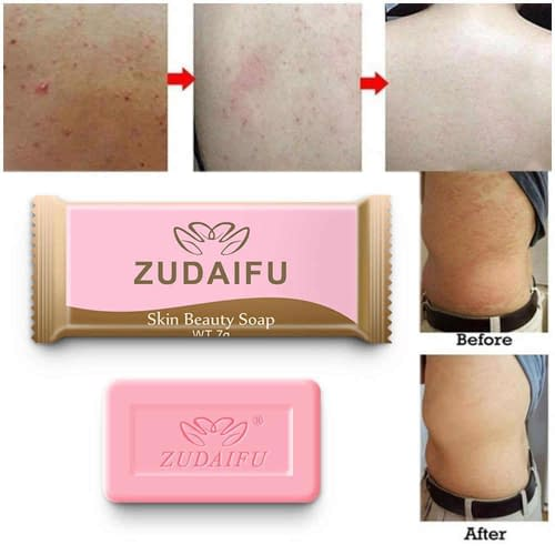 Купить Купить Серное мыло Zudaifu (Зудайфу). От псориаза
