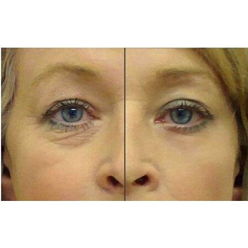 """Купить Коллагеновые патчи """"Collagen Crystal Eye Bag Mask"""" для кожи вокруг глаз с биозолотом 10 штук"""