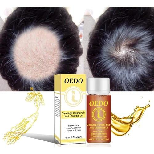 Купить Масло от выпадения волос OEDO 20 мл